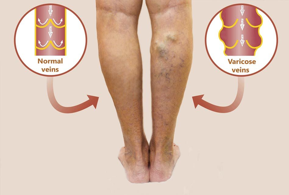Varicose Veins Mythbuster Guide by a Board Certified Vascular Surgeon