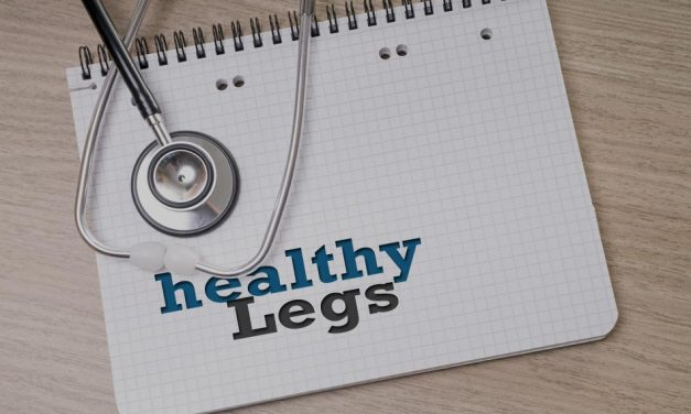 The Complete Beginner's Varicose Veins Guide – Washington, PA