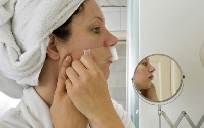How to Avoid Laser Hair Removal Complications and Risk