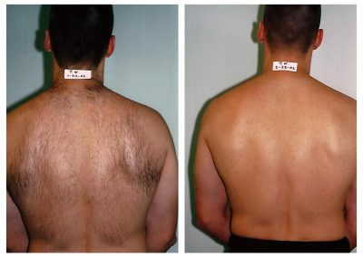 Before-After-Men-Laser-Hair-Removal-01