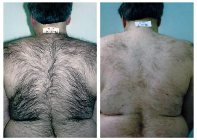 Before-After-Men-Laser-Hair-Removal-02