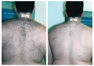 Before-After-Men-Laser-Hair-Removal-03