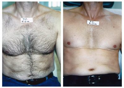 Before-After-Men-Laser-Hair-Removal-04