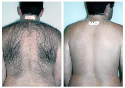 Before-After-Men-Laser-Hair-Removal-05