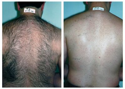 Before-After-Men-Laser-Hair-Removal-06