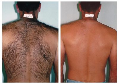 Before-After-Men-Laser-Hair-Removal-07