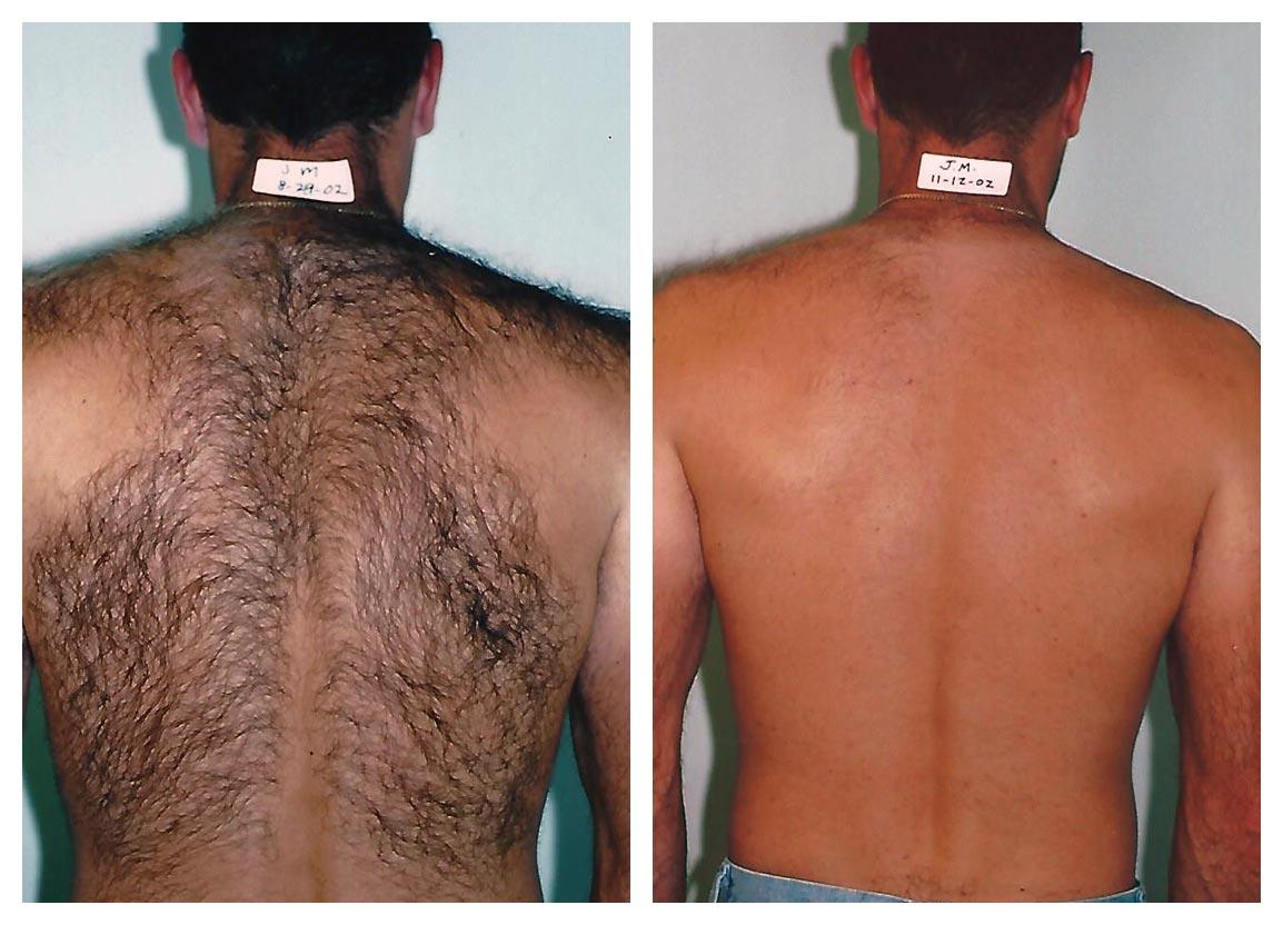 Laser Hair Removal For Men Happel Laser Center Pittsburgh