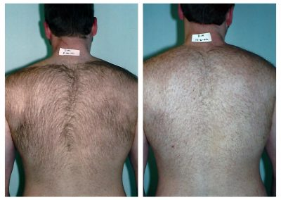 Before-After-Men-Laser-Hair-Removal-09