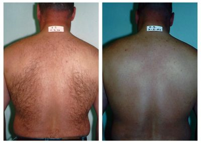 Before-After-Men-Laser-Hair-Removal-10