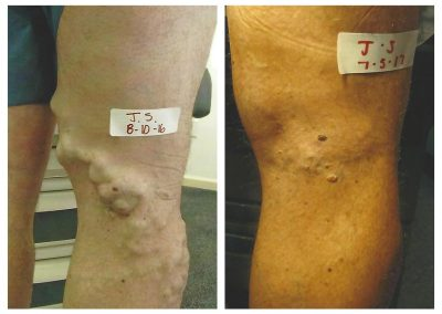Before-After-Veins-04
