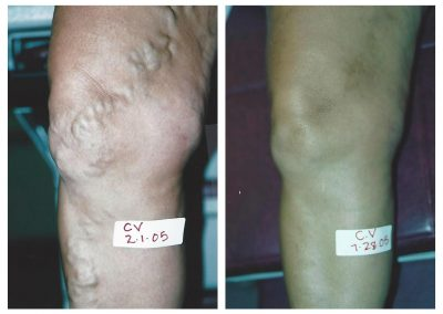 Before-After-Veins-07