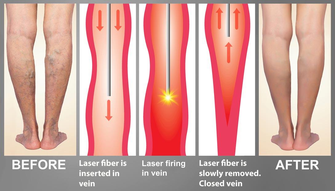 Endovenous Laser Treament