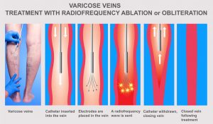 Radiofrequency ablation of the saphenous vein