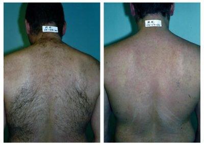 Laser Hair Removal For Men